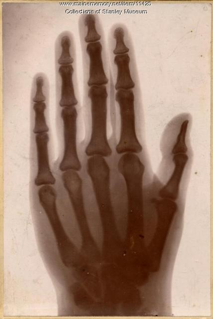 X-ray photograph of hand, ca. 1896
