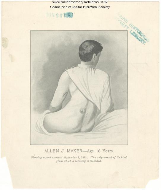 Allen J. Maker war wounds, ca. 1870
